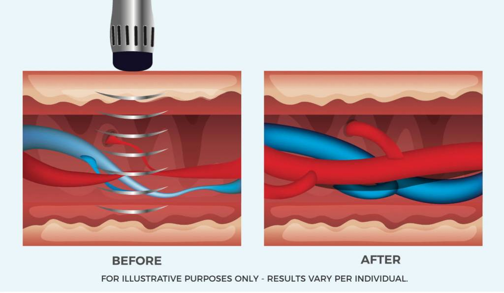 Shock Wave Therapy for ED